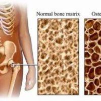 dohányzás csontritkulás, dohányzás káros egészségre, dohányzás leszokás,